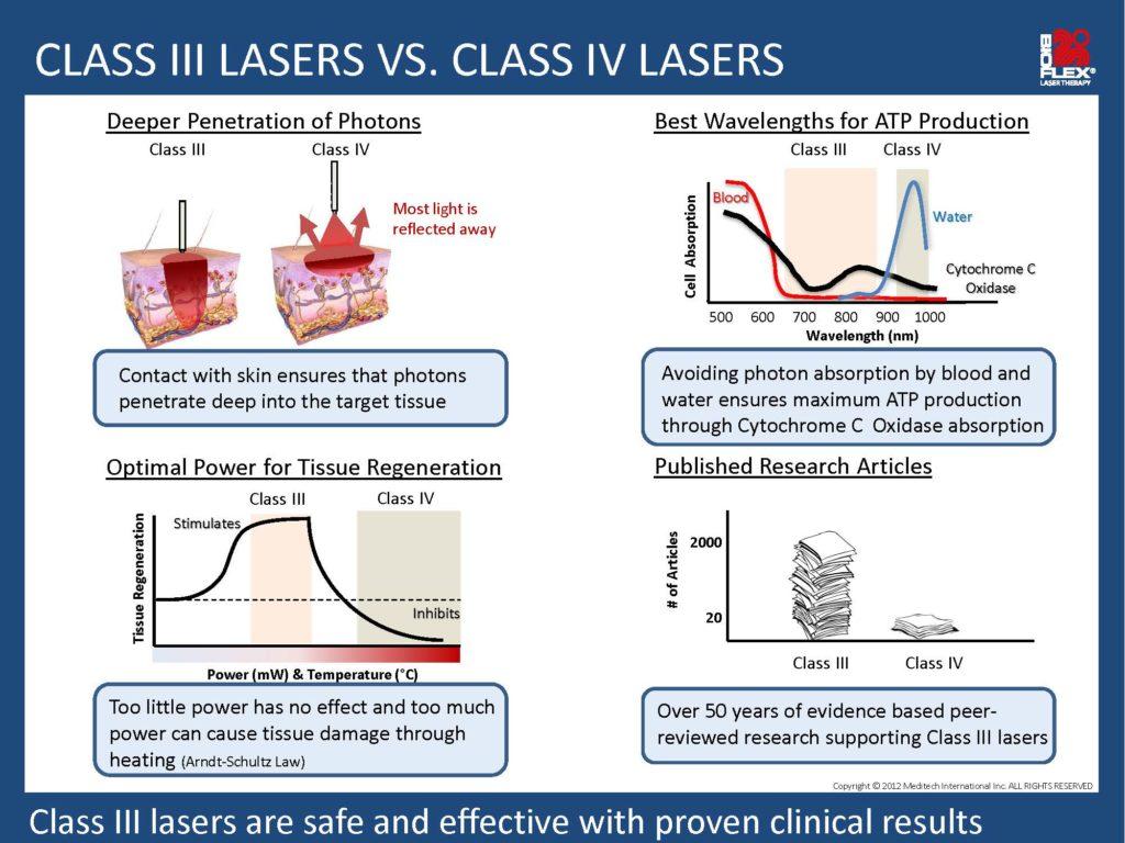 laser vergelijking