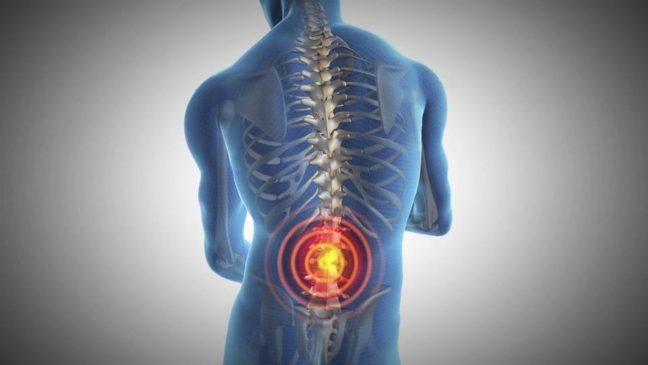 Fysiotherapie bij rugklachten